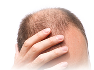 Hair Loss Miracle Solution